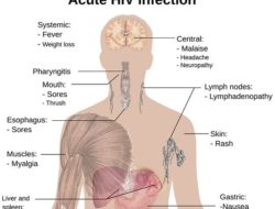 Communicable diseases list-HIV infection-
