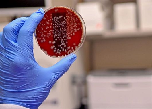 Importance of Microbiology