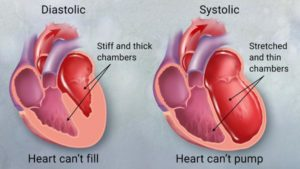 Heart Disease Essay  With Causes and Symptoms Outline